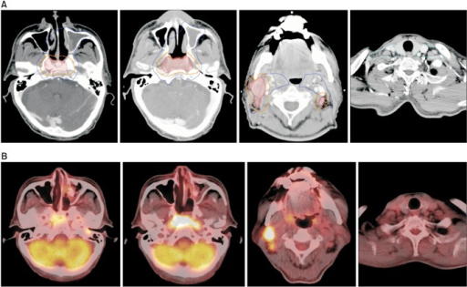 An example of target volume delineation for intensity-modulated radiotherapy. A 61-year-old male had a primary lesion involving the bilateral nasopharyngeal mucosa and central skull base, and multiple clinically involved lymph nodes at bilateral level II and right level III (clinical stage T3N2 according to the American Joint Committee on Cancer staging system 7th edition). Level IV and V cervical chains were not involved. (A) The high-risk clinical tumor volume (CTV, orange line) is created by 5-mm auto-expansion margin around the gross tumor volume (red line). The intermediate-risk CTV (blue line) is further expanded with a 5-mm margin around the high-risk CTV of the primary lesion, encompassing the involved cervical nodal stations and areas of high-risk. Bilateral retropharyngeal nodes and the entire nasopharyngeal mucosa are routinely included in the intermediate-risk CTV. The low-risk CTV (cyan line) includes the remnant cervical lymph nodes. (B) Images of fluorodeoxyglucose positron emission tomography taken before concurrent chemoradiation at a similar level to the displayed target volumes.