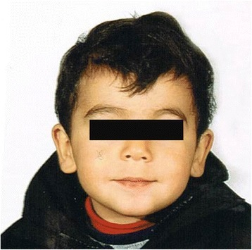 Face of the proband at age of 2 years and 3 months showing mild facial dysmorphic features listed in the text