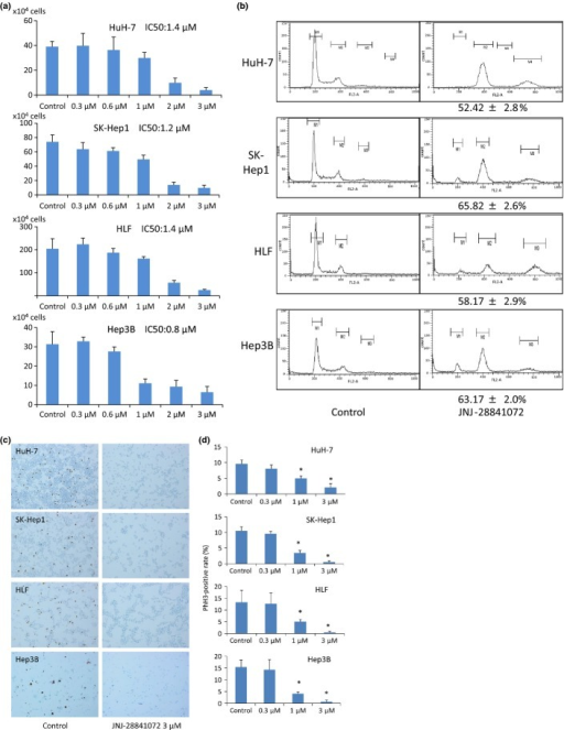 In vitro effects of JNJ-28841072 in human hepatocellular carcinoma (HCC) cells. (a) Representative bar graphs show cell viability rates (%) after incubation with various concentrations of JNJ-28841072 in each cell line. Vertical bars indicate SD. (b) Cellular DNA content was analyzed by flow cytometry in four human HCC cell lines after 24 h of incubation with 3 μM JNJ-28841072 or control DMSO buffer; the increasing rate of >4N DNA (%) is indicated. (c) Immunocytochemistry of phosphohistone H3 (PhH3) in human HCC cells after 16 h of incubation with 3 μM JNJ-28841072 or control DMSO buffer. Magnification, ×40. (d) PhH3-positive rate (%) of high power field. Vertical bars indicate SE. Statistical analysis used two-tailed Student's t-test (*P < 0.05).