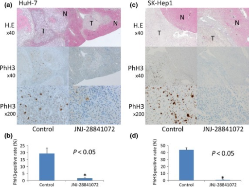 Pharmacobiological analysis of orthotopic xenograft models of hepatocellular carcinoma using HuH-7 cells (a,b) and SK-Hep1 cells (c,d). (a,c, upper) Transverse sections of liver tumor (T) or host normal liver (N) were stained with H&E. Magnification, ×40. The same sections were analyzed for expression of phosphohistone H3 (PhH3). (a,c, middle) magnification, ×40; (a,c, lower) magnification, ×200. (b,d) PhH3-positive rate (%) of high power field. Vertical bars indicate SE. Statistical analysis used two-tailed Student's t-test (*P < 0.05).