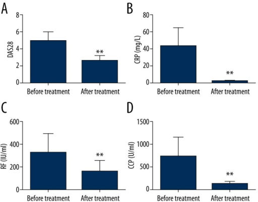 TCZ treatment impact on patient condition comparison. ** P<0.01 (** compared with before treatment).