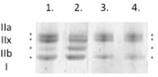 Typical myosin heavy chain (MyHC) isoform expression from control rat diaphragm muscle was determined by 6% SDS-PAGE. Types IIa, IIx, IIb, and I.