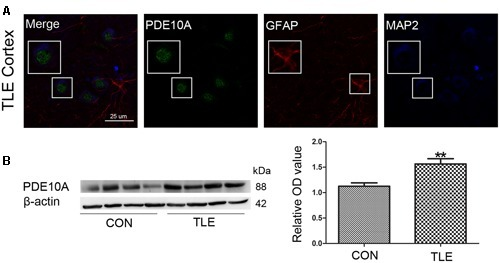 PDE10A expression in the temporal cortex of TLE patients. (A) Triple-label immunofluorescence demonstrated that PDE10A (green) and GFAP (red) were not co-expressed in astrocytes, but PDE10A (green) and MAP2 (blue) were co-expressed in the neurons of patient cortex (n = 10). The white squares indicate positive cells. (B) Representative Western blots revealed PDE10A expression in TLE patients and controls. The mean OD ratio of PDE10A relative to β-actin was significantly higher in the TLE group compared with the control group (**P < 0.01).