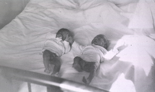 <p>View of newborn twins in bed.</p>