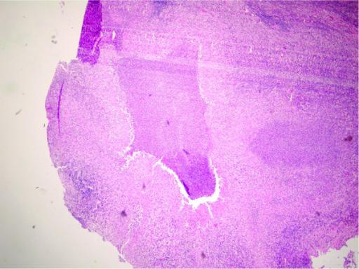 Cat Scratch Disease Lymph Nodes