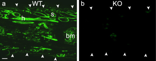 Phenotyping of tailsnips. Longitudinal sections of tail snips from a wild-type mouse (a) and a knockout mouse (b) immunoreacted with anti-NG2 antibody. Arrowheads delineate the edges of the tail snip sections. Strong NG2 immunofluorescence is apparent in hair follicles (h), sebaceous glands (s) and bone marrow (bm) and other structures in Fig. 1a but no NG2 fluorescence is detectable in Fig. 1b. Bar = 200 μm and also applies to Fig. 1b.