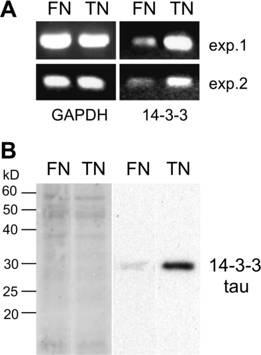Induction of 14-3-3 tau in cells grown on tenascin-C. (A) Photographs of ethidium bromide-stained agarose gels shows RT-PCR reactions of mRNA isolated from MCF-7 cells grown for 24 h on a fibronectin (FN) or on a tenascin-C (TN) substratum. They reveal an increase in 14-3-3 transcripts in cells from the tenascin-C substratum, whereas GAPDH expression is equal in both situations. The same result was obtained in two independently performed experiments (exp. 1 and exp. 2). (B) Amidoblack staining of a 12% SDS gel blotted to a PVDF membrane showing equal protein content of cell extracts loaded from cells grown on fibronectin (FN) or tenascin-C (TN; left). The immunoblot of the same membrane obtained with anti–14-3-3 tau reveals a stronger signal in the extract from cells grown on tenascin-C than on fibronectin (right).