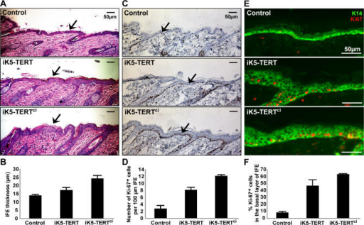 Both TERT and TERTci Enhance Proliferation of Interfollicular Epidermis in Mouse Skin(A) Expression of either TERT or TERTci increases thickness of interfollicular epidermis (IFE; black arrows). Dorsal skins were biopsied at days 55–60 and stained with H&E. Controls include non-transgenic and single-transgenic mice.(B) Quantification shows significant thickening of IFE in both iK5-TERT and iK5-TERTci (12 control, eight iK5-TERT, and 14 iK5-TERTci mice were analyzed. p < 0.00001 by one-way ANOVA and p < 0.05 by Student's t-test between control and iK5-TERT).(C,E) Expression of either TERT or TERTci increases proliferation in the basal layer of IFE. Abundance of Ki-67+ cells is increased in IFE of iK5-TERT and iK5-TERTci mice at days 55–60. Ki-67+ cells are stained by DAB (C) (black arrows), hematoxylin counterstain. Double immunostaining for Keratin 14 and Ki-67 (E). Green, K14; Red, Ki-67.(D,F) Quantification of Ki-67 staining shows significant increase in proliferation index. (D) Number of Ki-67+ cells per 100 μm. (F) Percentage of Ki-67+ cells within the basal layer of IFE (p < 0.0001 by one-way ANOVA and p < 0.01 by Student's t-test between control and iK5-TERT).
