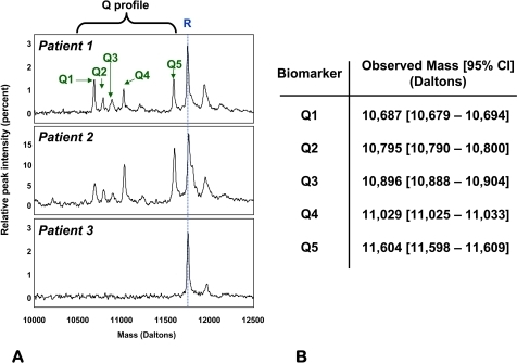 Biomarker peaks in the 10–12.5 kDa hypervariable region (Q-profile).A: Five SELDI peaks (Q1–Q5 denoted by green arrows) in the 10–12.5 kDa mass region appeared in a subgroup of the SELDI tracings analyzed (Patients 1 and 2 are examples). The third tracing (Patient 3) shows the lack of biomarkers in a woman that delivered at term. R denotes a reference protein peak present in all fluid samples which corresponds to a fragment of beta-2 microglobulin. B: experimental masses (average and 95% confidence interval (95%CI) for the five biomarker components of the Q-profile.