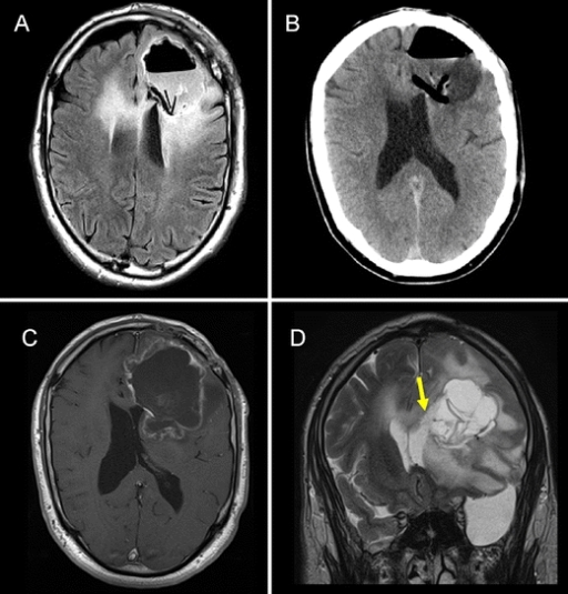 Occlusion of ventricular opening with collagen fleece (TachoSil®) followed by BCNU wafer (Gliadel) implantation in a case of multifocal glioblastoma. Reoperation was done for a rapidly progressive left frontal focus under chemotherapy. Twenty-four-hour MRI (a) and 10-day postoperative CCT (b) demonstrating the hypodense collagen fleece separating the resection cavity from the ventricular system in which the wafer material can be identified. c Three-month postoperative MRI T1w + GD. Ring-shaped contrast enhancement of the resection cavity was suspected as early local progression, causing mass effect. Residues of collagen fleece appear hypointense, occluding the left frontal horn of the ventricle. d Three-month postoperative T2w MRI. Spongy tissue replaces the collagen fleece (yellow arrow). Wafer remnants can be identified in the resection cavity. Despite mass effect of the cystic cavity, there are no signs of communication through the ventricular defect occluded with the collagen fleece 3 months after surgery