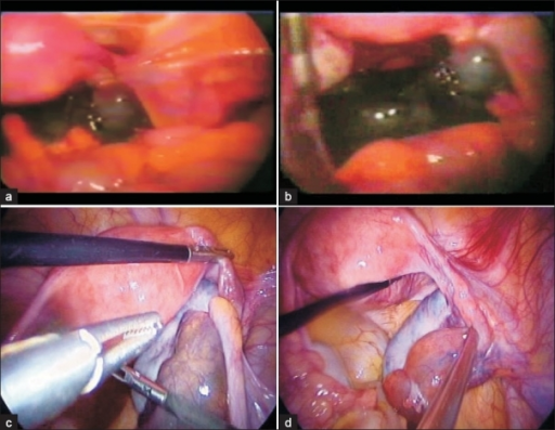 Acute torsion: Adnexa conserved. a) Preop: Acute torsion with black haemorrhagic adenaxa; b) After detorsion with preservation of adnexa colour may not improve immediately; c) Preop: Acute torsion- oedematous tubes; d) After detorsion - Tubal swelling disappeared and colour back to normal