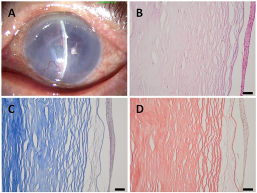 A patient with a 3-year history of pseudophakic bullous keratopathy.(A) A slit-lamp photograph of the cornea showing dense scarring and neovascularization; (B) in the histological sections, obvious intense scarring, neovascularization and inflammatory cells can be observed; (C) Masson's trichrome staining; and (D) Van Gieson staining. Scale bar 50 µm.
