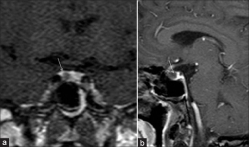 ACTH secreting pituitary microadenoma in a patient with clinical features of Cushing's disease and increased serum cortisol level. High resolution dynamic contrast enhanced T1W coronal (a) and sagittal (b) images of brain (at 60 seconds) show a small non enhancing (dark) microadenoma (arrow) lateralized to right side of the pituitary gland. The normal pituitary gland shows marked homogenous enhancement