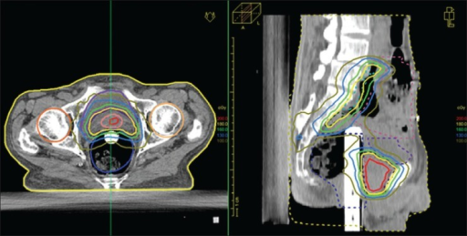 Dose distribution in-patient images for IMRT plan in axial and sagittal views
