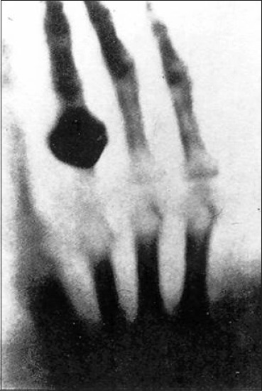 The first X-ray – bones of the hand (possibly Fraulein Roentgen)