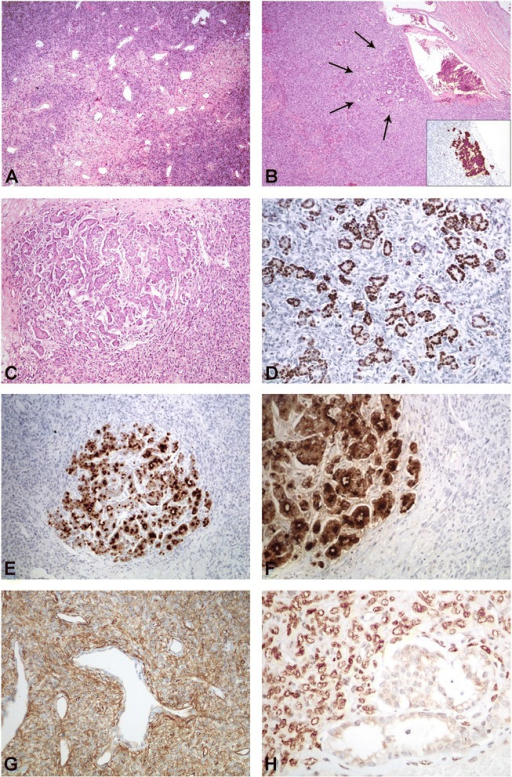 """Extrapleural SFT hosting a male breast cancer metastasis"". A) Classic morphology of a SFT. B) Ductal structures within a SFT representing the metastasis of a male ductal adenocarcinoma of the breast. The ductal adenocarcinoma shows strong CK7 expression (insert). C) Higher power view of the metastasis within the SFT. D-F) The ductal adenocarcinoma is positive for estrogen (D), BRST2 (E), and mammoglobin (F). G) The SFT component shows strong CD34 expression. H) The SFT expresses STAT6."