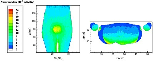 Photoneutron absorbed dose (mGy/Gy) distribution around the prostate in the prostate treatment for 15 MV accelerator