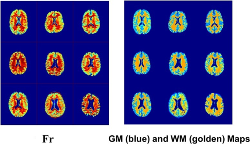 Fr maps from Fig. 2b with the GM and WM masks that were obtained from SPM segmentation of the nine subjects.