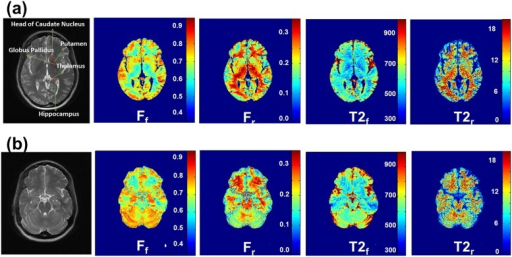 ZAPPED maps of Ff, Fr, T2,f, and T2,r in the two slices through the basal ganglia and cerebellum.Note that excellent contrast and image quality were obtained in the cerebellum region, and a complicated stripe pattern is displayed.