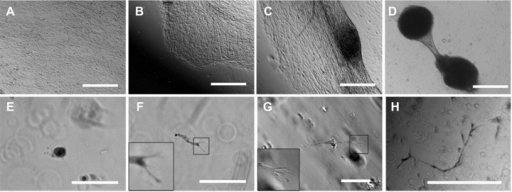 Tubule formation by HPTCs on 2D surfaces and in 3D gels. (A)–(D) show tubule formation by HPTCs growing on matrigel-coated bottoms of 24-well plate wells. (A) First, a confluent monolayer is formed. (B) Subsequently, the monolayer retracts on one side. (C) Then the monolayer retracts on both sides of a myofibroblast aggregate. (D) Finally, a tubule attached to myofibroblast aggregates is formed. The process is similar to that shown in Figure 1. (E)–(H) show tubule formation by HPTCs suspended in matrigel. (E) Initially, single cells or small groups of cells are present. Note that most of these structures distributed in the 3D gel are out of focus, if a given field is imaged and appear as blurred rings on the images. (F, G) Cell outgrowth occurs (no cyst formation before cell outgrowth), leading to the formation of elongated cords or tubules. The tip cells are typically branched and display multiple filopodia (shown as enlarged in the insets; the branched cell shown in (F) appears blurred due to problems with imaging these structures within the gel). (H) Finally, thin tubules displaying multiple branches are formed. The size of tubules formed in matrigel is typically less than 1 mm, and the tubules are not attached to myofibroblast aggregates (note the different morphology of the structures shown in D and H). Scale bars: (A–D) 1 mm, (E–G) 100 μm and (H) 500 μm.