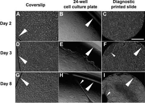 Triggering of tubulogenesis in the presence of a 3D substrate architecture. HPTCs were grown to confluency on glass cover slips (A, D and G), in the wells of 24-well plates consisting of tissue culture plastic (B, E and H), and in the wells of diagnostic printed slides (C, F and I). Cover slips with a side length of 18 mm are used. The wells of 24-well plates and diagnostic printed slides are 15 mm and 2 mm in diameter, respectively. Cells on the different devices are monitored over a time period of 8 days. (A)–(C) show the confluent monolayers at day 2. The edges of the different substrates used are indicated by large arrowheads. (E, F) Monolayer retraction starts at day 3 at the edges of the wells (marked by large arrowheads) of 24-well plates and diagnostic printed slides. This leads to areas devoid of cells (marked by a small arrowhead in F). No rearrangements are observed at (D) day 3 and (G) day 8 at the edges of cover slips (marked by large arrowheads), which do not have a 3D structure. The monolayer is still intact on cover slips. By contrast, major rearrangements are noted at day 8 in the wells of (H) 24-well plates and (I) diagnostic printed slides. Formation of tubules (marked by small arrowhead in H) and myofibroblast aggregates (marked by small arrowhead in I) is observed. The wells of 24-well plates and diagnostic printed slides provide different surface chemistries and surface areas. However, in both cases, the edge is a 3D structure, in contrast to the edge of cover slips. Scale bar: 500 μm.