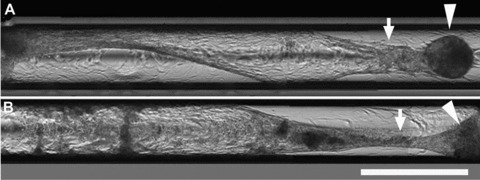 Tubulogenesis in capillaries. HPTCs are seeded into glass capillaries with an inner diameter of 580 μm. (A) and (B) show two different capillaries containing HPTCs imaged ∼2 weeks after seeding. Several images were stitched together in order to cover a larger area. Initially after seeding, monolayers covering the inner walls of the capillaries are formed. The monolayer is still intact in the left half of the lower capillary (B). Myofibroblast aggregates appear after monolayer formation. The monolayer is then rearranged and detached from the capillary walls, and tubules are formed within the capillaries (marked by arrows), which are attached to myofibroblast aggregates (marked by arrowheads). Scale bar: 1 mm.