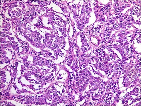 A case of metastatic hepatocellular carcinoma. Note the trabecular pattern of growth with pleomorphic, hyperchromatic nuclei; (H&E, original magnification × 400)
