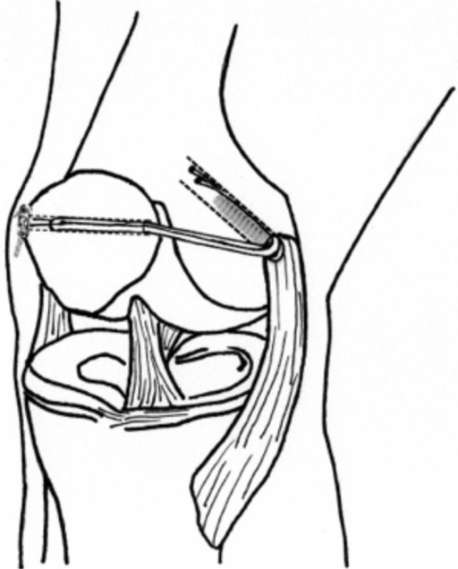 Endobutton patellar fixation ilustration. A medialparapatellar approach is performed identifying the intersection ofthe superior and medial thirds of the medial border of the patella,where the anatomic insertion point is located. A transverse tunnel isthen made in the patella and the tendon graft is then passed throughthe tunnel guided by the wire and fixed with an endobutton. Thefemoral edge of the graft is also passed through the tunnel and fixedwith an interference screw with the knee in 30-45 degrees of flexion
