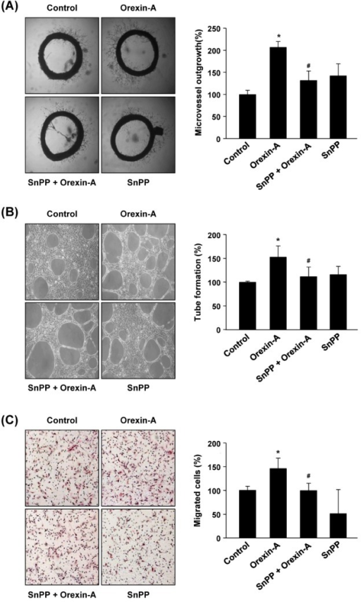 Effect of HO-1 inhibition on orexin-A-stimulated angiogenesis ex vivo and in vitro. (A) Rat aortic rings were embedded in Matrigel and cultured with orexin-A (200 nM) for 4 days in the presence or absence of SnPP (20 µM). The sprouted microvessels from aortic rings were photographed under a microscope (left). The newly formed sprouts of endothelial cells were counted (right). (B) HUVECs were seeded on growth factor-reduced Matrigel in the presence or absence of SnPP (20 µM) and treated with orexin-A (200 nM) for 4 hr. Cells were observed under a phase contrast microscope and the number of tube areas was counted. (C) HUVECs were seeded on gelatin-coated filters of transwell chambers. Cells were incubated with orexin-A (200 nM) and SnPP (20 µM) for 4 hr. The filter containing migrated cells was stained with H&E and photographed. The number of migrated cells was counted. All results shown are representative of at least three independent experiments. *p<0.05 vs. control; #p<0.05 vs. orexin-A alone.