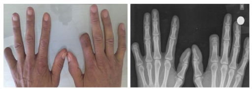 Clinical and radiographic images at postoperative 10th month.