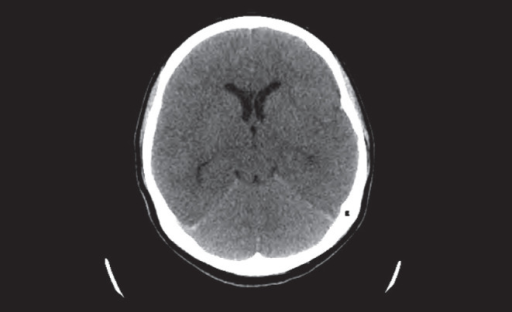 Computed tomography scan of the head demonstrating generalized cerebral parenchymal swelling, diffuse sulcal space and cisternal space effacement suggestive of meningoencephalitis