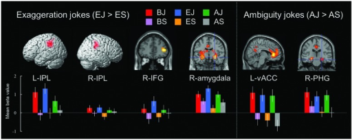 Distinct neural mechanisms for exaggeration jokes and ambiguity jokes in fronto-parietal lobe (IPL and IFG). (Left top) Brain images of greater activation were found for simple main contrast of exaggeration jokes with corresponding non-joke baseline (EJ > ES) in bilateral IPL and right IFG during cognitive processing and in right amygdala during affective processing. (Right top) Brain images of greater activation were found for simple main contrast of ambiguity jokes with corresponding non-joke baseline (AJ > AS) in left vACC and right PHG during affective processing and extending to ventrolateral prefrontal cortex (IFG) and frontopolar cortex (MFG) during cognitive processing. MNI coordinates for distinct regions can be found in Table 6. (Bottom) Bars show mean beta values of peak voxels for each of the three types. Error bars represent SEM. L, left; R, right; IPL, inferior parietal lobe; IFG, inferior frontal gyrus; vACC, ventral anterior cingulate cortex; PHG, parahippocampal gyrus.