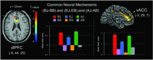 Common neural mechanisms of general joke processing. (Left) Commonly activated region of the left dorsolateral prefrontal cortex (dlPFC) in joke comprehension stage. (Right) Commonly activated region of the ventral anterior cingulate cortex (vACC) in joke appreciation stage. Bars show mean beta values of peak voxels for the left dlPFC (BA 9) and vACC (BA 32). Error bars represent SEM.