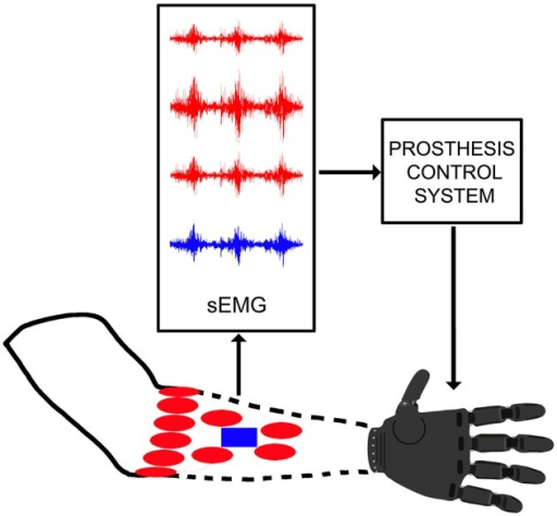 Scheme of a generic myoelectric control system: (i) for commercial prosthesis without pattern recognition (blue rectangle); and (ii) for research (or control system with pattern recognition; red ellipses). The same architecture is assumed in the external forearm.