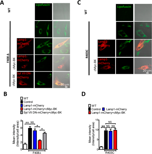 BK upregulation reduces abnormal lipofuscin accumulation in human fibroblasts carrying F408∆ but not R403C mutation.(A,B) Abnormal lipofuscin accumulation in TRPML1-F408∆ human fibroblasts and its rescue by BK overexpression. The BK rescue effect was inhibited by Syt VII DN, suggesting it depends on promoting lysosomal exocytosis. More than 35 cells were analyzed for each condition. (C,D) Abnormal lipofuscin accumulation in TRPML1-R403C human fibroblasts was not rescued by BK overexpression. More than 40 cells were analyzed for each condition.
