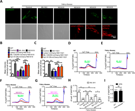 BK upregulation reduces lipofuscin accumulation in human skin fibroblasts from Fabry disease by promoting TRPML1-mediated Ca2+ release.(A,B) Abnormal lipofuscin accumulation in human fibroblasts from Fabry disease was rescued by ML-SA1 (10 μM, 16 hrs) or NS1619 (15 μM, 16 hrs). Expression of TRPML1-DD/KK or Syt VII DN reversed the rescue effect of ML-SA1 and NS1619. More than 40 cells were analyzed for each condition. (C) Abnormal lipofuscin accumulation in human fibroblasts from Fabry disease was rescued by NS11021 (3 μM, 16 hrs). Expression of TRPML1-DD/KK or Syt VII DN reversed the rescue effect of NS11021. More than 40 cells were analyzed for each condition. (D–H) human fibroblasts from Fabry disease exhibited compromised TRPML1-mediated lysosomal Ca2+ release in response to ML-SA1 (50 μM) (as measured by Fura2 ratio), and this was rescued by NS1619 (15 μM, ~60 s) or NS11021 (3 μM, ~ 60 s) pretreatment. Co-applying Paxilline (PAX, 3 μM) inhibited the rescue effect of NS1619 or NS11021. (I) Comparable Fura2 responses to GPN (200 μM) between human fibroblasts from Fabry disease and WT human fibroblasts, indicating a similar level of lysosomal Ca2+ content.