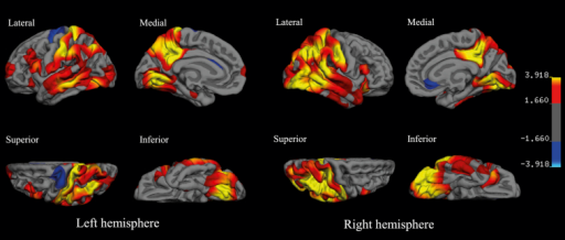 The cortical signature of the Down syndrome brain with amyloid pathology: regional variations in cortical thickness in the PIB-positive group (n = 19), when compared to PIB-negative group (n = 27). The color scale on the right represents the significance of the difference in thickness as −log 10 (p-value) with red-yellow indicating thinner cortex and blue-light blue indicating thicker cortex in the PIB-positive group relative to PIB-negative group. The results are false discovery rate corrected at p < 0.05.
