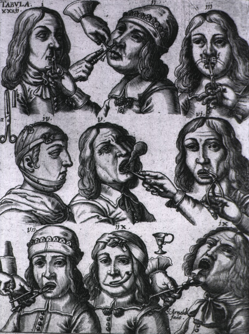 <p>Nine vignettes showing primarily tooth and nasal polyp extraction procedures.</p>