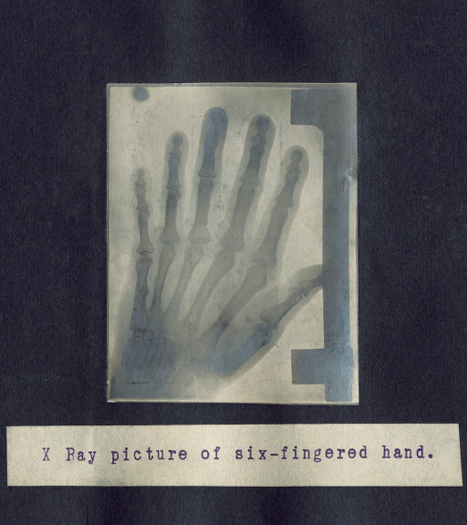 <p>X ray picture of a six-fingered left hand.</p>