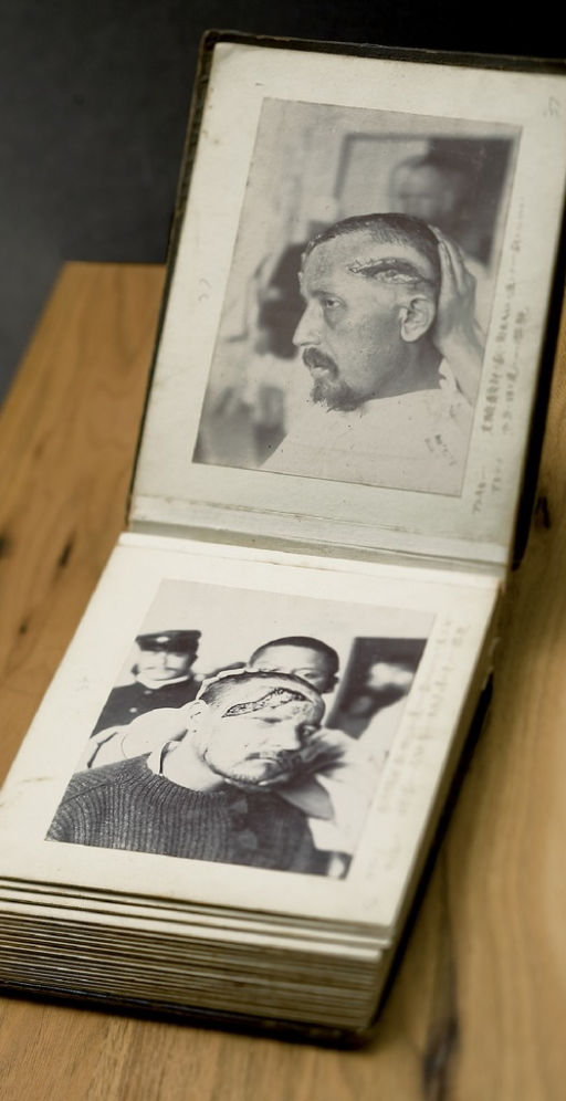 <p>Image of an open photo album showing 2 photographs of male Russian soliders with head injuries.  Russo-Japanese War photographic album.</p>