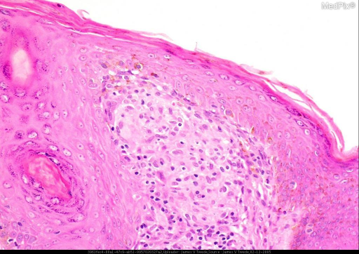 Histopathology: The biopsy shows acute and granulomatous inflammation of the dermis. Special stains for infectious etiologies were negative.