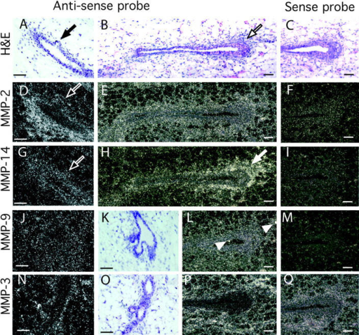 Localization of MMPs-2, -3, -9, and -14 mRNA within the mammary gland. Mammary glands were taken at 50 d old and sectioned. (A–C, K, and O) Hematoxylin and eosin counterstain of mammary gland sections in G–J and N, respectively. Note the initiating lateral branch in A (black arrow) and TEB in B (black outlined arrow). In situ hybridization analysis was performed with the following antisense and sense probes (as indicated): (D–F) MMP-2, (G–I) MMP-14, (J, L, and M) MMP-9, and (N, P, and Q) MMP-3. Note the reduction in MMP-2, but not MMP-14 mRNA, at the initiating lateral branch in the adjacent sections D and G (white outlined arrows); the localization of MMP-14 around the TEB in H (white arrow) and the spots of MMP-9 expression probably localized in macrophages in L (white arrow heads). Bars, 50 μm.