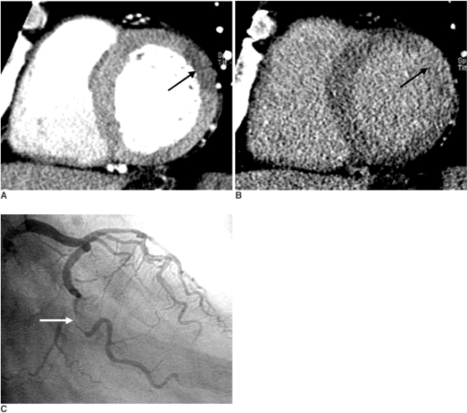 Images obtained in a 73-year-old man with reperfused acute myocardial infarction.A. The short-axis multiplanar reformation image obtained with early-phase multidetector CT shows an early perfusion defect involving the whole thickness of the mid-anterolateral myocardium (arrow), which corresponds to significant stenosis of the left circumflex coronary artery.B. The short-axis multiplanar reformation image obtained with late-phase multidetector CT shows transmural late enhancement in the same area (arrow). Note the total absence of residual perfusion defect within the hyperenhanced area.C. Right oblique caudal projection of the left coronary angiogram shows total occlusion with bridge collateral flow at the proximal segment of the left circumflex coronary artery (arrow).