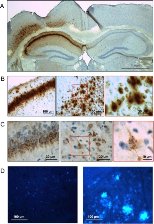 AAV-mediated expression of APP.SLA in wild-type mouse brain.Intracerebral injection of 10E8 transducing units (t.u.) AAV-APP.SLA vector in wild-type mice (n = 3) analyzed 12 weeks p.i. A, B: IHC for APP and its metabolites with Mab 6E10 on brain sections after antigen retrieval with formic acid [18]. Red square in panel B (middle) is enlarged in right panel. C: IHC for amyloid peptides with Mab 3D6; red square in middle panel is enlarged in right panel. D: histochemical staining with compound X-34 for protein aggregates [41] of AAV-APP.SLA injected mouse (left) and from an APP.V717I transgenic mouse (age 22 months) (right panel) as positive control for amyloid pathology as described [24], [29]. Scale bars panel A 1 mm, others as indicated.