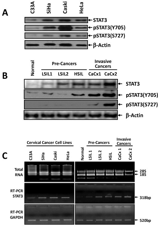 Cervical cancer cells over-express STAT3 with phosphorylation on both tyrosine and serine residues. (A) Cervical cancer cell lines C33a (HPV-), SiHa & CaSki (HPV16+) and HeLa (HPV18+) (2 × 106 cells) were lysed, and 50 μg of total cellular proteins were resolved on 7.5% SDS-PAGE, electrotransferred to a PVDF membrane, and probed for STAT3, pSTAT3(Y705), pSTAT3(S727) and β-actin expression by respective antibodies. (B) STAT3 expression and phosphorylation increases as a function of severity of cervical lesions. Representative immunoblot of STAT3, pSTAT3(Y705), pSTAT3(S727) and β-actin indicating expression of respective protein in total cellular proteins (50 μg) isolated from normal (N), low grade squamous intra-epithelial lesion (LSIL1 & 2), high grade SIL (HSIL) and cervical cancer biopsy tissues (CaCx1, CaCx2) as described in Methods. (C) STAT3 RT-PCR analysis of cDNA derived from cervical cancer cell lines and cervical tissues. Representative ethidium bromide-stained agarose gel (3%) showing specific amplification STAT3 transcripts (318 bp) in the cDNA derived from total RNA of indicated samples (middle panel). Quality and quantity of RNA used for cDNA preparation was examined and confirmed by 1% agarose gel electrophoresis (upper panel). GAPDH RT-PCR (amplicon size 520 bp) was used as internal control (lower panel).