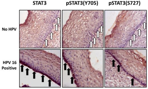 Localized overexpression of STAT3 and pSTAT3 in basal layer of early precancer lesions positive for HPV16. Immunohistochemical analysis of STAT3, pSTAT3(Y705) and pSTAT3(S727) expression in HPV negative and HPV16 positive LSILs. White arrows indicate absence of STAT3 expression in basal layer of HPV negative lesions. STAT3 and pSTAT3 showed focal positivity and were localized in the nuclei in HPV16 positive LSIL tissues (marked by black arrows).