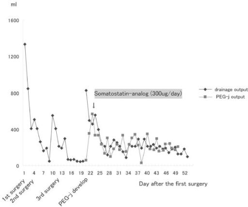 Figure 5:Percutaneous endoscopic gastrojejunostomy for a ...