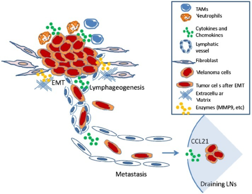 Model of melanoma cell metastasis to regional LNs. The process of inflammation-mediated metastasis of melanoma cells from primary sites to regional LNs. (1). Tumor cells induce an inflammatory microenvironment (i.e., infiltration of tumor-associated macrophages (TAMs) and neutrophils; production of cytokines and chemokines); (2). Facilitated by matrix-metallo proteases, tumor cells invade basement membrane and degrade extracellular matrix; (3). Tumor cells undergo epithelial to mesenchymal transition (EMT), which increases the propensity of metastasis; (4). Increased numbers of lymphatic vessels around or with tumors increase probability of invading lymphatic system; (5). Tumor cells passively flow within lymphatic vessels into draining LNs; (6). Metastatic cells survive and form focal metastases within LN.