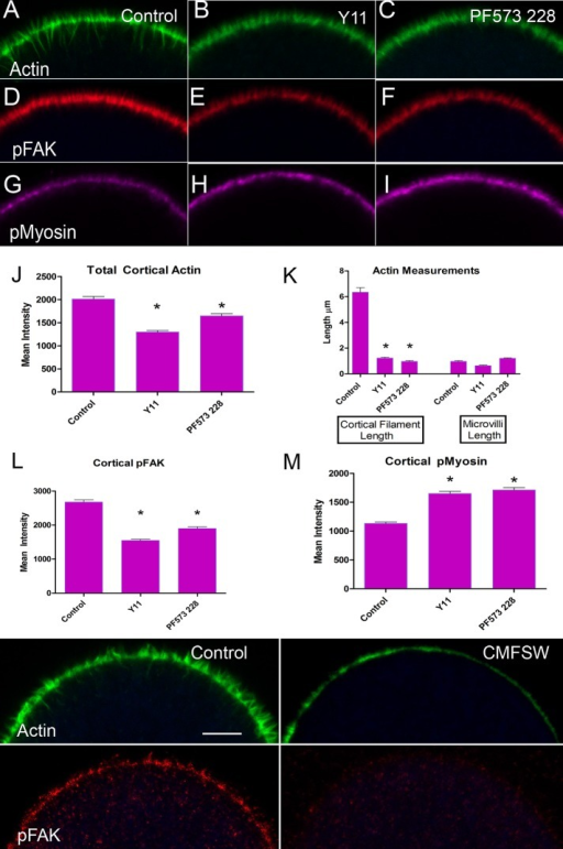 Inhibitors of FAK kinase activity interfere with the formation of cortical actin and accumulation of pY397FAK (pFAK) but enhance accumulation of pS19myosin light chain (pMyosin). (A–I) Representative confocal optical sections of eggs at 90 min postfertilization, untreated or treated with FAK inhibitorsY11 or PF573 228. (J–M) Quantification of images based on measurements of phalloidin fluorescence (J), linear measure of actin filament length (K), pFAK immunofluorescence (L), or pMyosin immunofluorescence (M). (N–Q) Confocal images of untreated eggs (Control) or eggs treated with Ca2+, Mg2+–free seawater (CMFSW) and prepared for immunofluorescence. The loss of pY397FAK and reduction in actin abundance indicate that normal cortical development requires extracellular divalent cations, a common feature of integrin-mediated adhesion.