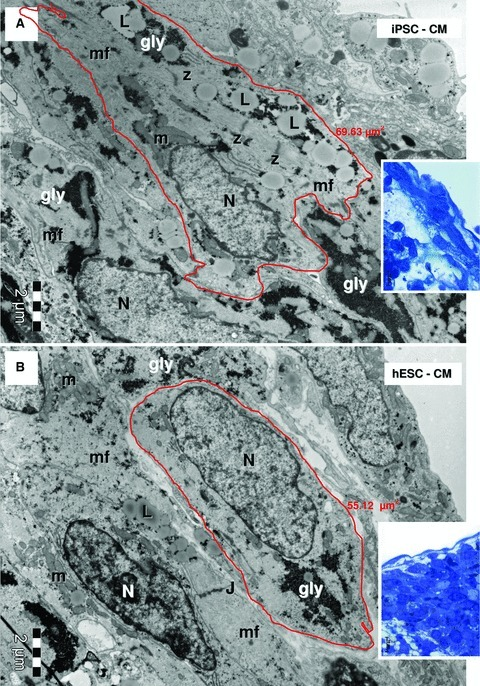 Electron micrographs of the EBs periphery (red marked areas in Fig. 1A and B, higher magnification of blue sections in the corresponding insets) show ellipsoid cardiomyocytes derived from HFK-iPSC (A) and hESC (B). Myofilaments (mf) organized in distinct sarcomeric structures delineated by Z-bands. Lipid droplets (L), glycogen masses (gly) and clusters of mitochondria (m) are visible in cytoplasm of cardiomyocytes. Small junctions (J) connect the cardiomyocytes. N: nucleus. The measured areas of red outlined cardiomyocytes are 69.63 μm2 for HFK-iPSC-CM (A) and 55.12 μm2 for hESC-CM (B).